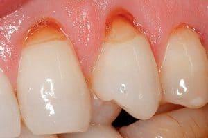 Qué es la abrasión dental