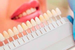 Aclarar el tono del esmalte de los dientes