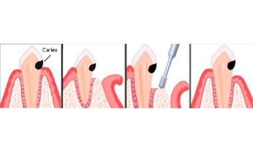 Cómo se hace un alargamiento coronario