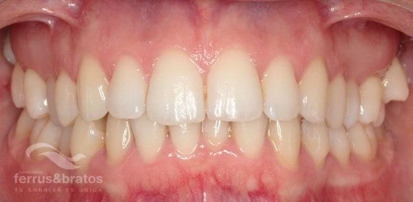 antes-ortodoncia-invisalign