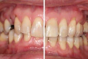 La ortodoncia en adultos funciona