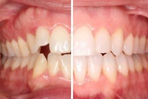 Resultado después de ortodoncia con brackets