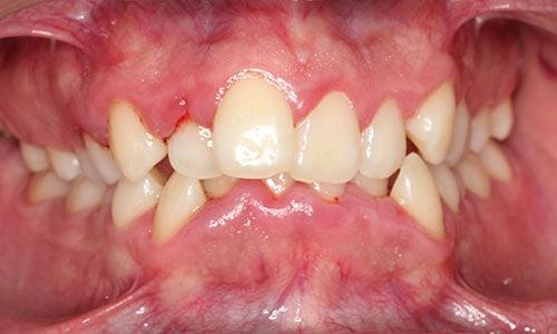 dientes-apinados