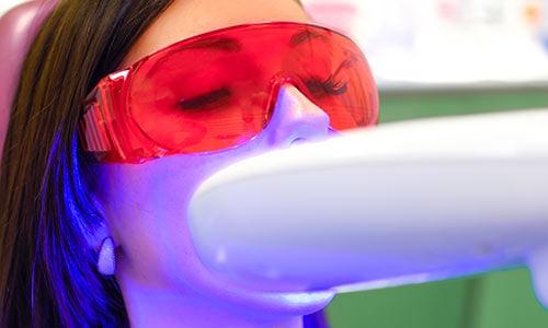 blanqueamiento-dental-manchas-dientes
