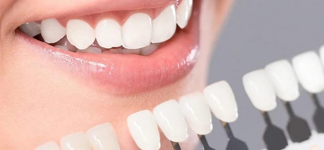 lapiz blanqueador dental white now touch