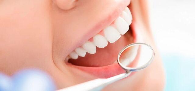 blanqueamiento de dientes casero