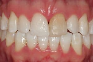 Desvitalización pieza dental