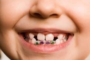 Tratamientos de ortodoncia con brackets para niños