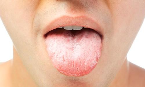 Medicamentos para tratamiento boqueras