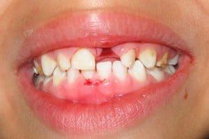 Imagen avulsión dental