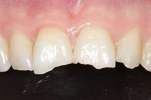 Causas inflamación pulpa dental