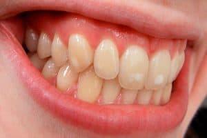 Consecuencias de elegir mal la pasta de dientes