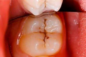 Por qué se caen los dientes