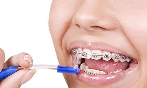 debo-usar-cepillo-interproximal-ortodoncia