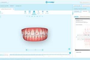 Plan de tratamiento ortodoncia removible