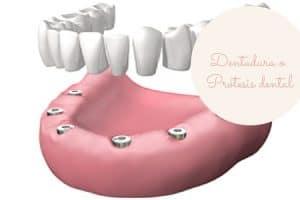Dentadura dental movil