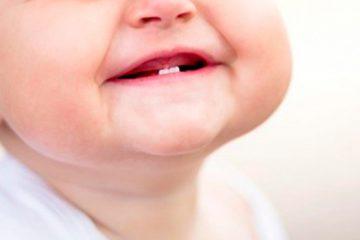 Etapas de la dentición