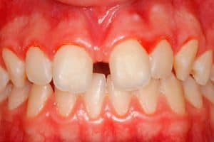 Síntomas de que hay que operar el frenillo labial