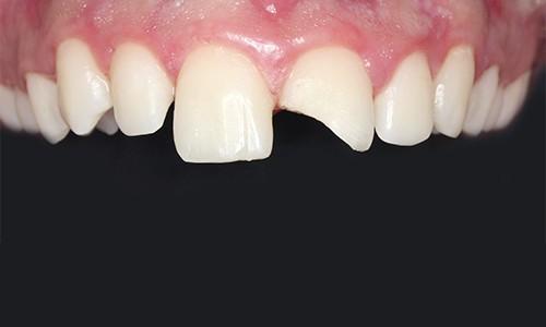 Rotura-dental-como-tratarla