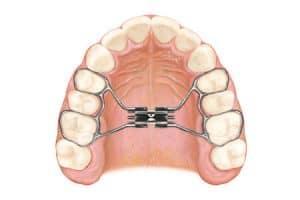 Ortodoncia removible para niños con paladar estrecho