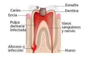 Absceso en el ápice de la raíz del diente