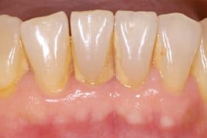 Caso de acumulación de sarro dental por higiene deficiente