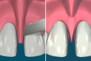Operación del frenillo labial
