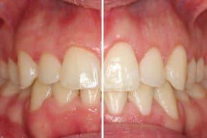 Recontorneado estético gingival: antes y después