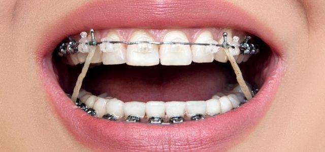 Porque Se Ponen Gomas En Los Brackets Elásticos Intermaxilares Linear Unit Ortodoncia Para Qué Sirven Las Gomas De Los Brackets
