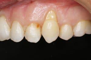 Clínica dental en la que se hace injerto de encía en Madrid