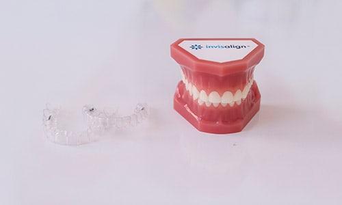 Invisalign recomendado para tratamientos de ortodoncia con coronas