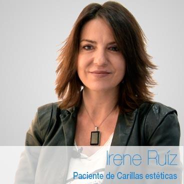 Irene Ruiz – Opinión carillas