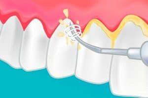 Cómo se hace una limpieza dental