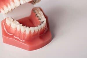 Heridas en la boca por ortodoncia