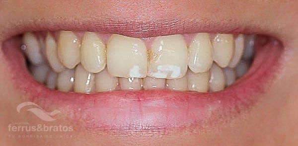 Caso de éxito de blanqueamiento dental para manchas blancas