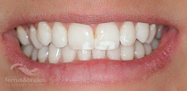 Caso de éxito de blanqueamiento para manchas blancas en los dientes