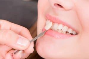 Cómo mantener el blanco de tus dientes