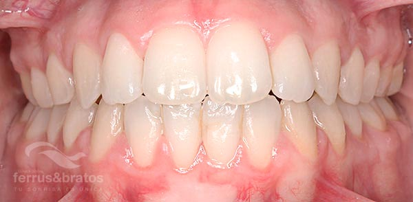 Caso de éxito ortodoncia con brackets Incógnito