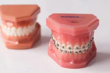 Tratamiento de ortodoncia con brackets autoligados