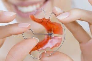 Precio tratamiento de ortodoncia interecptiva en Madrid