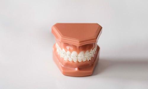 Precio de tratamiento de ortodoncia con brackets transparentes