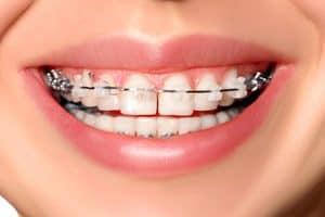 Precio ortodoncia mixta con brackets linguales