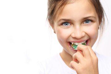 Cuánto cuesta un tratamiento de ortodoncia para niños en Madrid