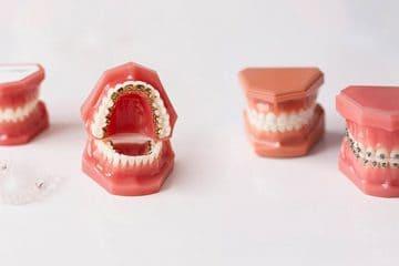 Precio ortodoncia Madrid - España
