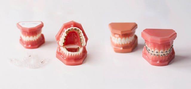 Precio dentadura completa fija dentix