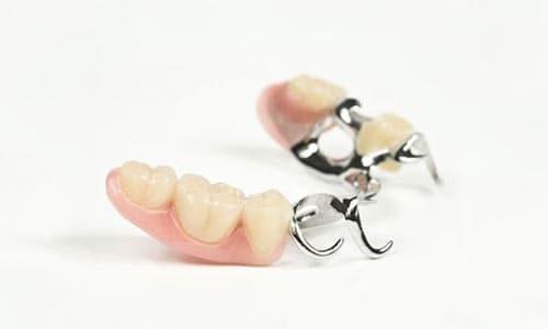 protesis-mucodentosoportada-dentadura-postiza