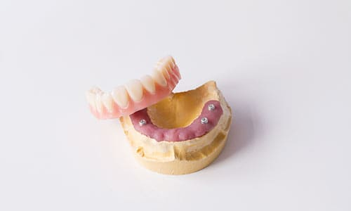 dentadura-postiza-protesis-removible