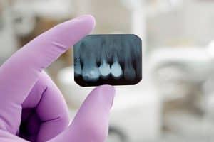 Radiografías en el dentista en embarazadas