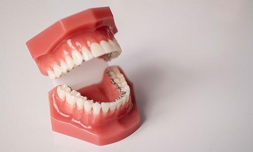 Tratamiento de ortodoncia invisible: brackets Incognito
