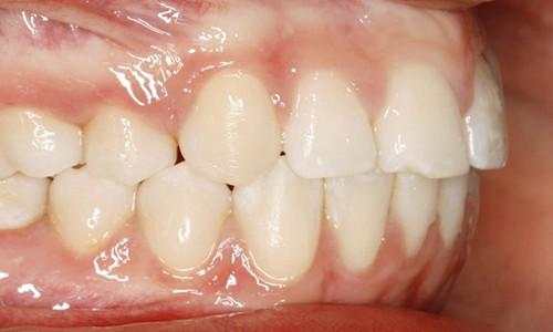 Golpe-en-los-dientes-incisivos